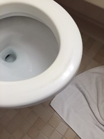 Toilet seat mildew stains