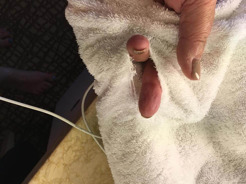 Hole in the towel